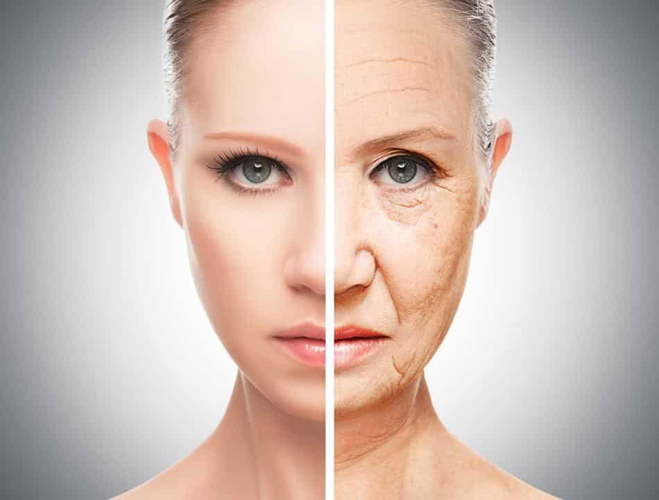 Penyebab Kerutan di Wajah yang Optimal